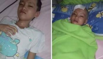 Andini, Bocah 8 Tahun Penderita Tumor Otak Asal Desa Nibung Butuh Uluran Tangan