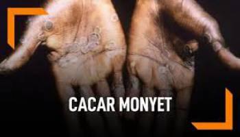 Beredar Isu Virus Cacar Monyet, Belum Ditemukan di Basel