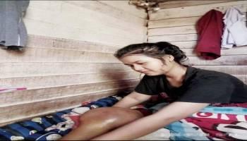 Kemiskinan Menjadikan Gadis Cantik Atlet Voli Andalan Sekolah Ini Terancam Amputasi