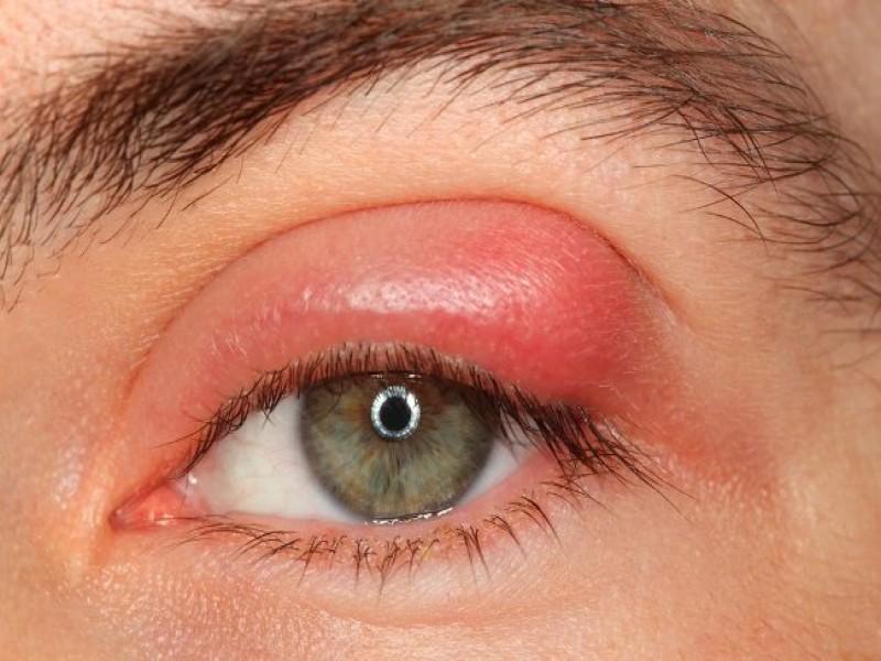 Tips Kesehatan: 5 Cara Mengatasi Kelopak Mata Bengkak Sesuai Penyebabnya